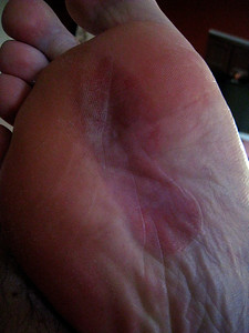 blistered feet